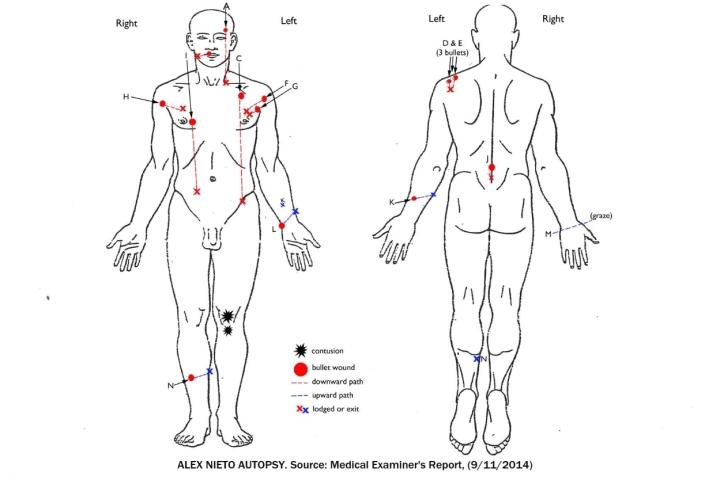 Alex Nieto Autopsy Front Back_001