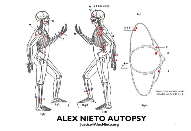Alex Nieto Autopsy Side w Title_001